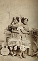 The Millie-Christine sisters, conjoined twins, standing. Pho Wellcome V0029576.jpg