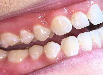 Attrition (dental) - Typical appearance of attrition