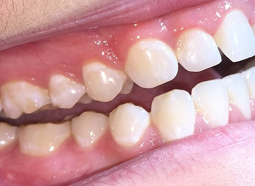 Typical Appearance of Dental Attrition of the Teeth