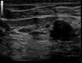 Ultrasound Scan ND 134324 1350010 cr.png