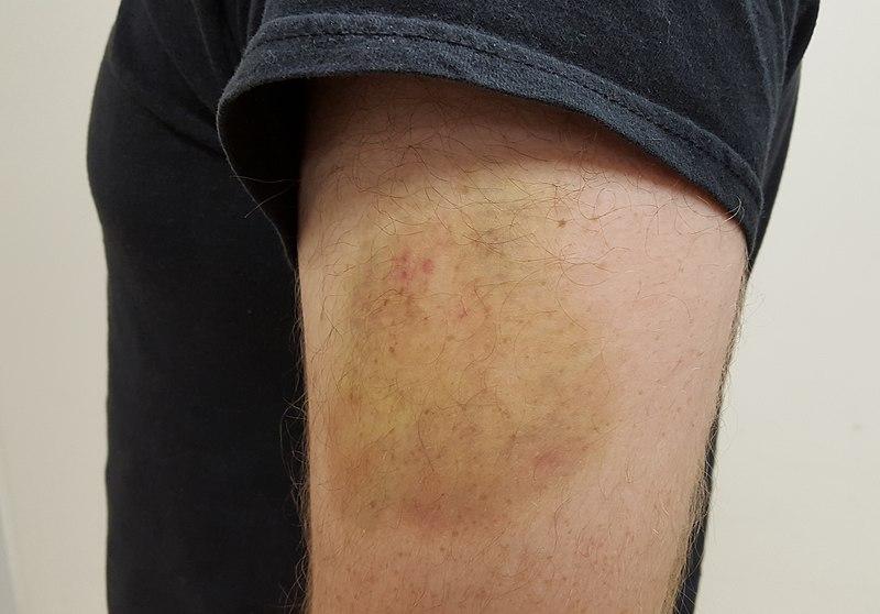 Fichier:Upper Arm Bruise.jpg