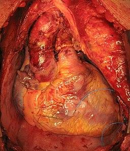 Пересаженное сердце в грудной клетке реципиента