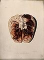 A diseased brain. Coloured aquatint by W. Say after F. R. Sa Wellcome V0009766EL.jpg