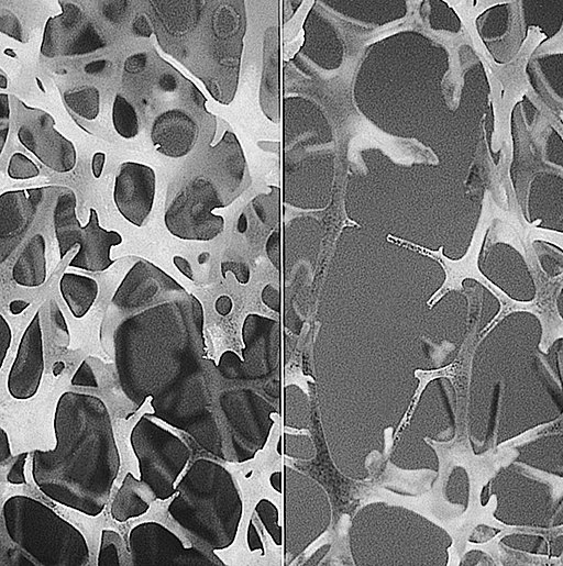 Bone normal and degraded micro structure
