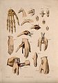 Diagrams illustrating cross-sections of hands and fingers an Wellcome V0016840EL.jpg