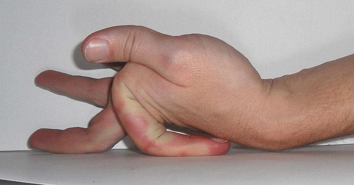 Frostbite Finger Symptome und Behandlung