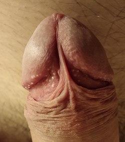 Mărirea penisului prin metoda chirurgicală – ai face aşa ceva?