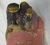 Blackened necrosis of multiple toes on an adult foot