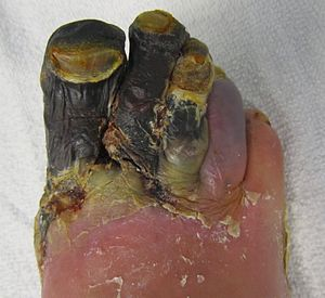 Gangrene - Wikipedia