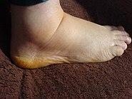 Geschwollener menschlicher Fuß