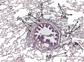 Histology of normal lung tissue in patients with hamartochondroma2.png