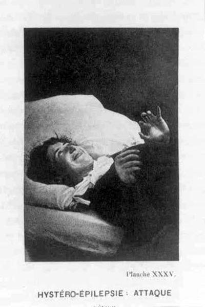 File:Hystéro-Épilepsie Attaque XXXV.jpg