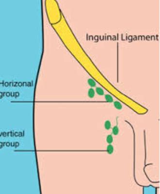 Inguinal lymph nodes - Image: Inguinal Lymph nodes