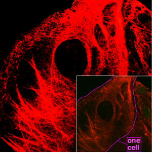 Keratin - Microscopy of keratin filaments inside cells.