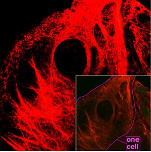 Keratin - Microscopy of keratin filaments inside cells.