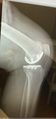 Knee Left X-Ray Partial Joint Side view 2018.png