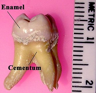 Tooth enamel - Labeled molar