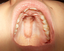 Lump In Roof Of Mouth