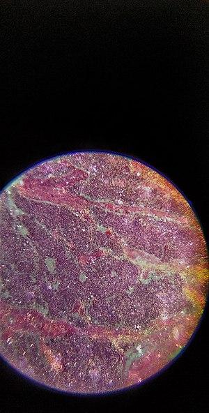 Microscopic image of testicular cancer.jpg
