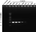 Parasite130116-fig2 Entamoeba gingivalis.tif