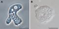 Parasite140120-fig3 Acanthamoeba keratitis.png