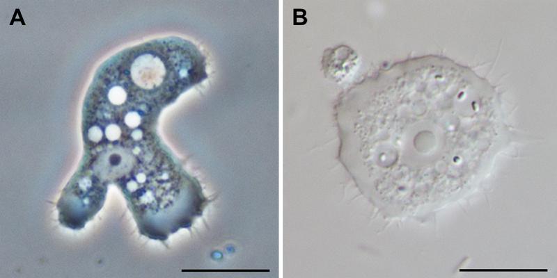 File:Parasite140120-fig3 Acanthamoeba keratitis.png