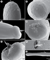 Parasite160062-fig6 - Nematode parasites of four species of Carangoides - Philometra dispar (SEM).png