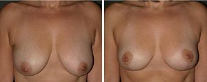 English: Breast reduction: pre-operative and p...