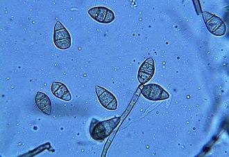 Magnaporthe grisea -  Spores of M. grisea