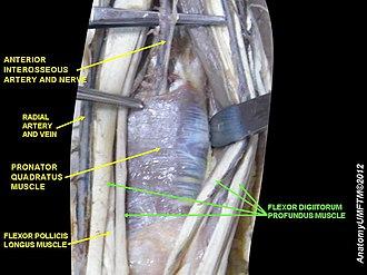 Flexor digitorum profundus muscle - Image: Slide 12MMMM