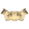 Sphenoid bone - close-up - inferior view.png