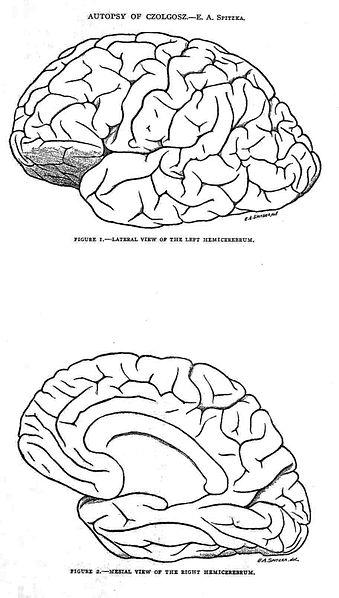 File:Autopsy drawings of brain of Leon Czolgosz.jpg