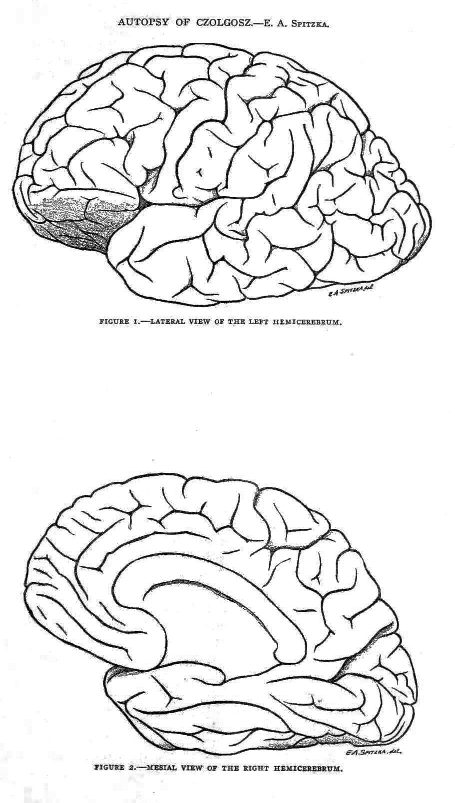 Autopsy drawings of brain of Leon Czolgosz