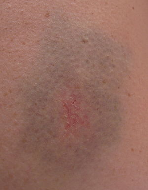 Bruise from bicycle accident.jpg