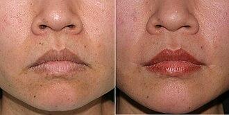 Lip lift - Lip lift: the pre-operative aspect (left), and the post-operative aspect of the lifte corners of the mouth.