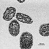 EM smallpox, grown via tissue, isolate by centrifuge.jpg