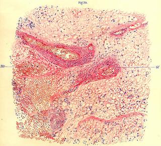 Encephalitis lethargica Form of encephalitis (sleeping sickness)
