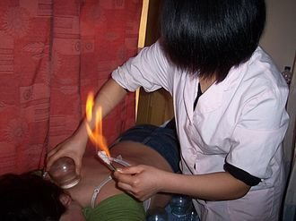 Cupping therapy - A person receiving fire cupping