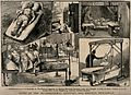 Five images of different kinds of treatment - in hospitals a Wellcome V0016581.jpg