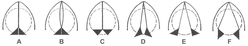 Glottis – Wikipedia