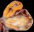 Human ovary.jpg