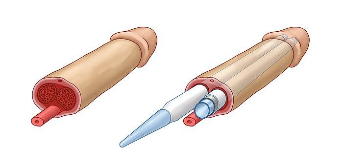implantant dla penisa