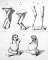 J. von Heine, Poliomylitis, 19thC. Wellcome L0003130.jpg