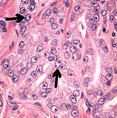 adenocarcinoma prostata acinare
