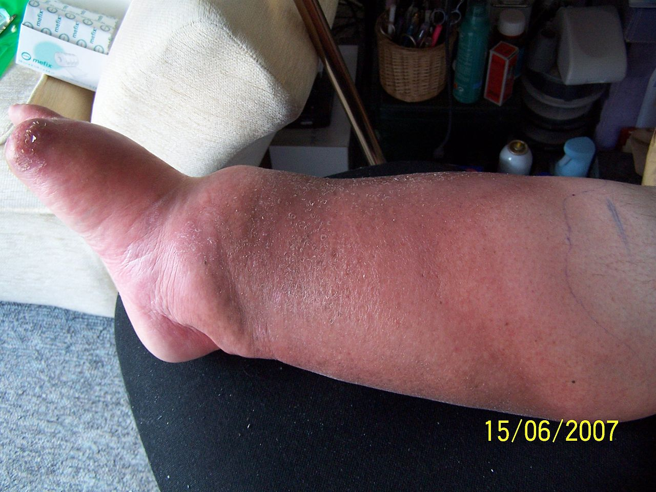 File:My leg with cellulitis and oedema.jpg - Wikimedia Commons