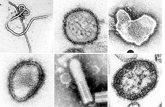Negarnaviricota - A montage of transmission electron micrographs of some viruses in the phylum Negarnaviricota. Not to scale. Species from left to right, top to bottom: Zaire ebolavirus, Sin Nombre orthohantavirus, Human orthopneumovirus, Hendra henipavirus, an unidentified rhabdovirus, Measles morbillivirus.