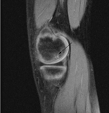 English: 'Sagittal and coronal T1 and T2 images demonstrate linear low T1, high T2 signal at the articular surfaces of the lateral aspects of the medial femoral condyles bilaterally, corresponding to the radiographs, confirming the presence of bilateral osteochondritis dissecans, with diffuse increase in T2 signal at the medial femoral condyles, indicating marrow edema.' From the case of a 9-year-old buy with bilateral knee pain.