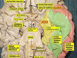 meaning of diencephalon