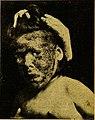 Précis des maladies des enfants (1920) (14591446579).jpg