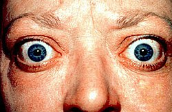 Proptosis and lid retraction from Graves' Disease.jpg